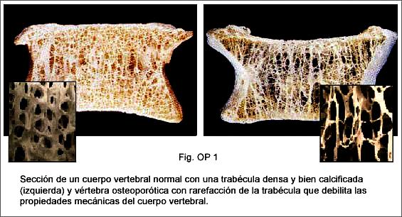 Fig-OP1