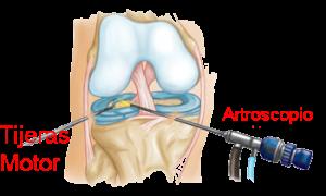 AnatRodilla3